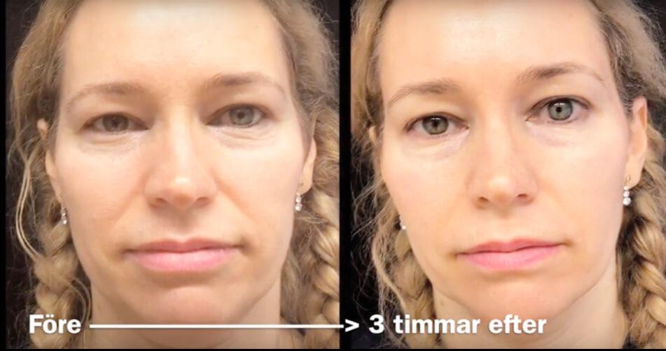 Resultat Fotona 4D hos Veritaskliniken