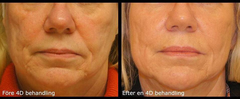 4D ansiktslaser hos Veritaskliniken