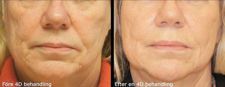 4D-behandling hos Veritaskliniken