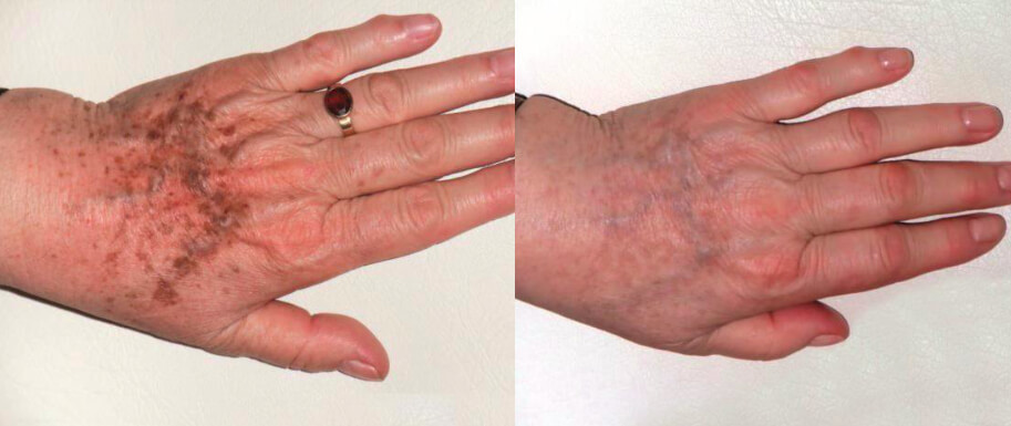 reducering av pigmentering på händer med Nordlys IPL