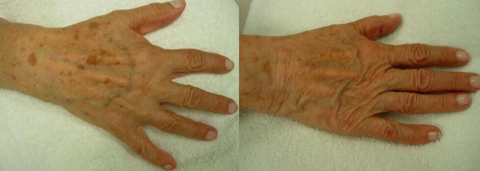 hudföryngring av händer med Nordlys IPL