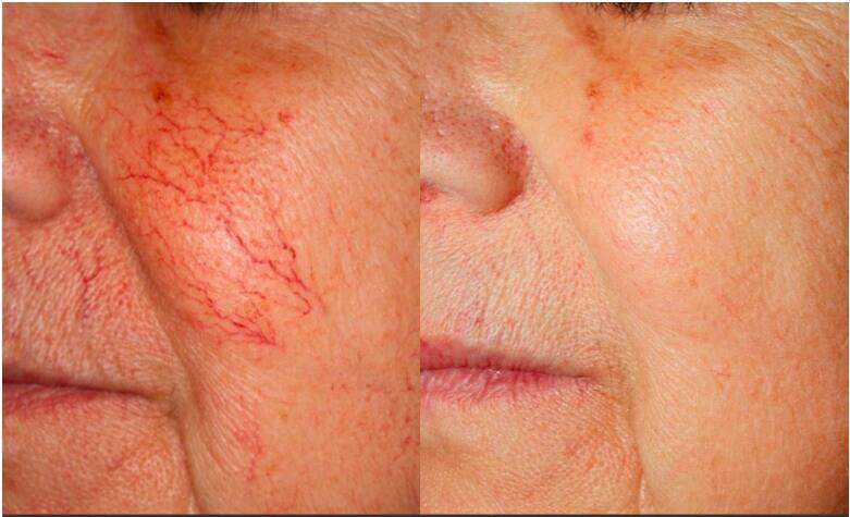 få bort ytliga blodkärl i ansiktet