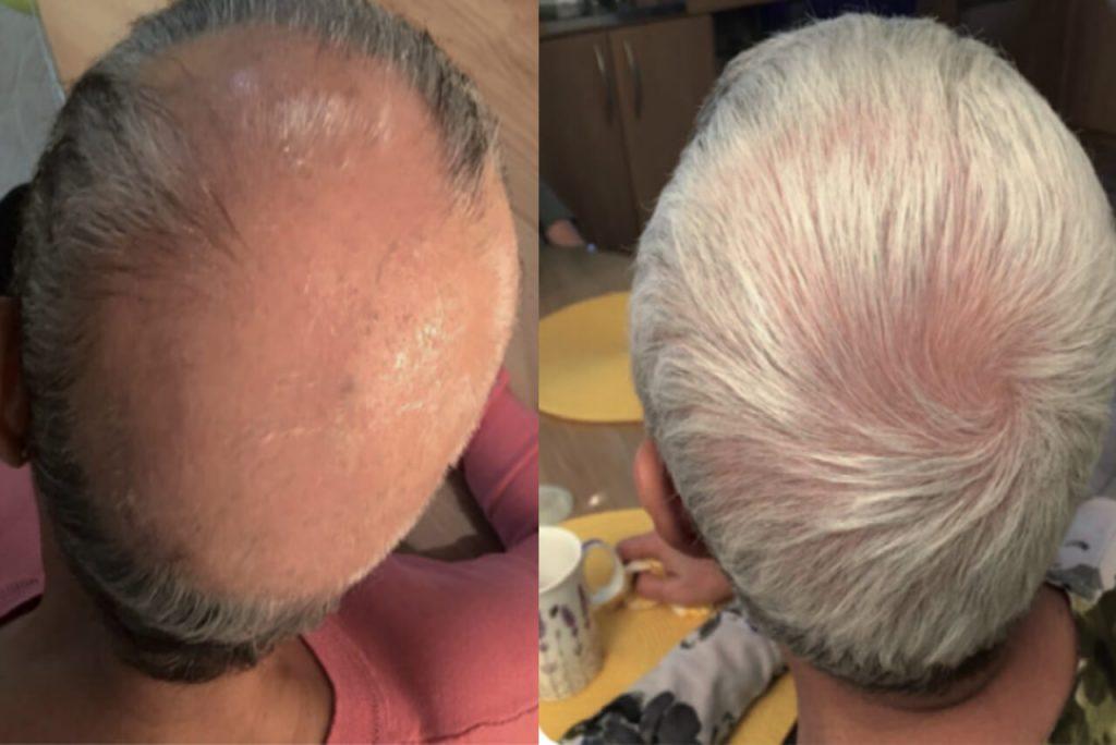 PRP mot håravfall hos Veritaskliniken