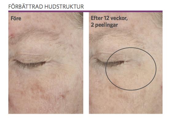 Retinol-behandling mot pigmentering hos Veritaskliniken